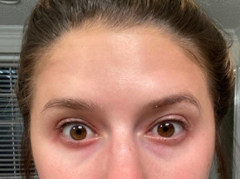 eyelift after