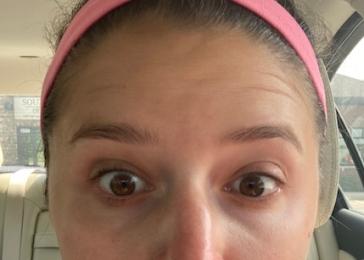 eyelift before